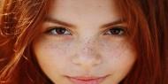 نصائح للحماية من ظهور النمش على وجهك في الصيف