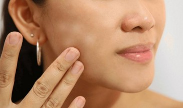 كيفية التخلص من بقع الوجه